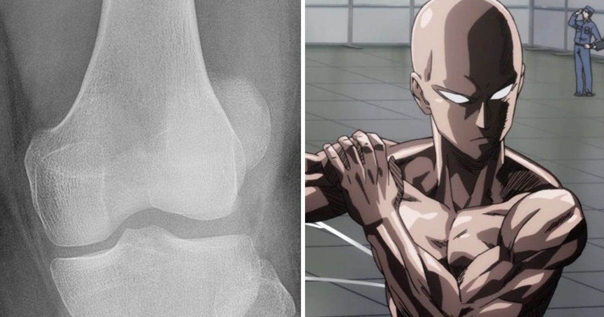 Man Attempts One Punch Man Workout Challenge Ends Up Fracturing His Ankle Good Times