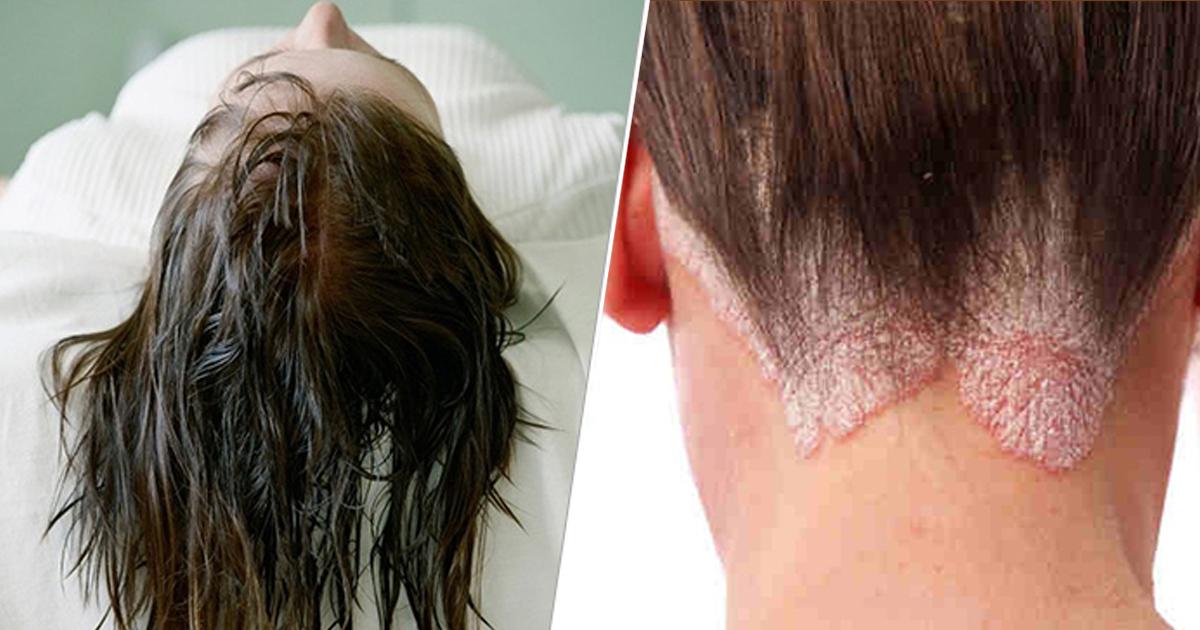 濕著頭髮睡覺不利健康,例如可誘發皮膚疾病。(網上圖片)